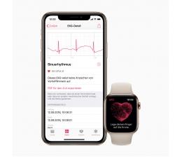 apple-mobile-devices-apple-watch-ab-sofort-auch-in-deutschland-als-ekg-nutzbar-herzrhythmus-im-blick-15471.jpg