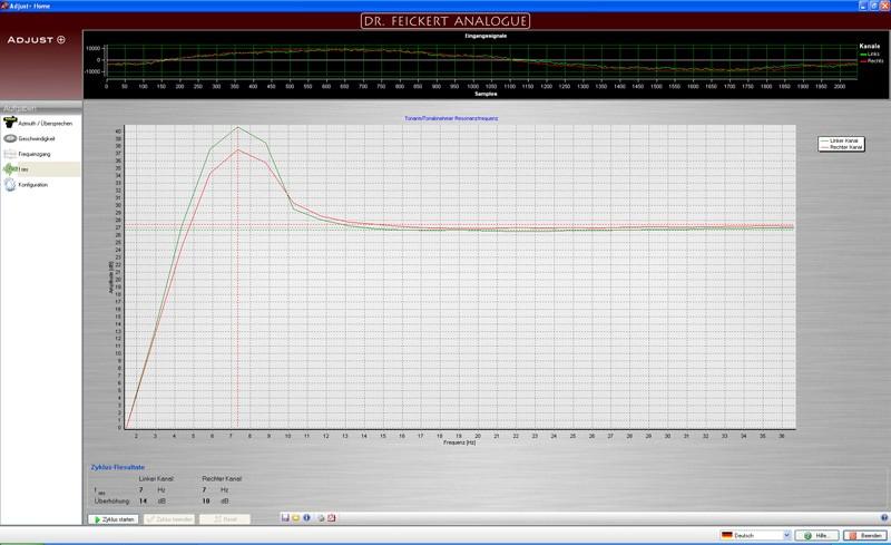 Tonabnehmer Denon DL103 im Test, Bild 13